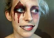 zombiebruised
